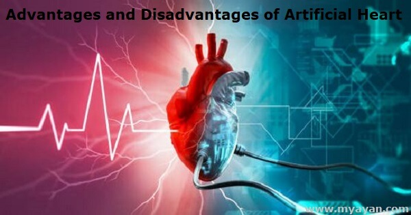 Advantages and Disadvantages of Artificial Heart