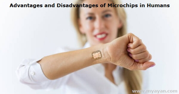 Advantages and Disadvantages of Microchips in Humans