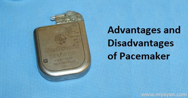 Advantages and Disadvantages of Pacemaker