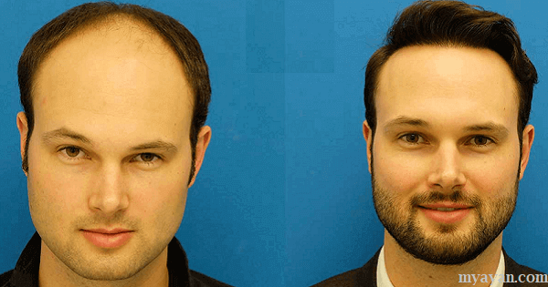 Best Hair Transplant Doctors in Dubai